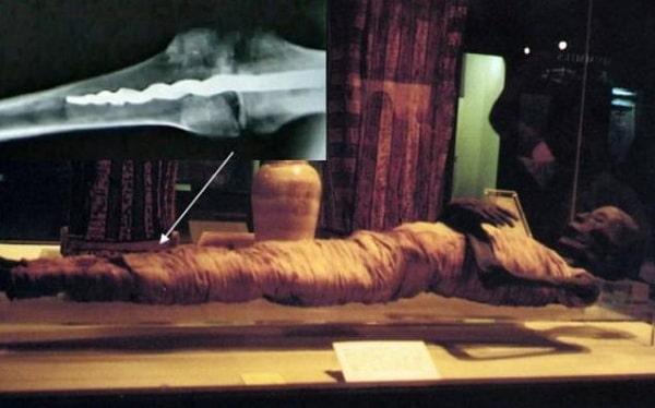Медицинская загадка древней мумии